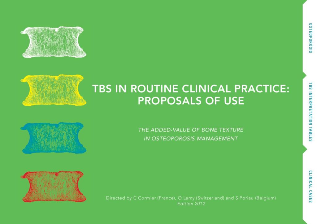 TBS in routine clinical practice: Proposals of use